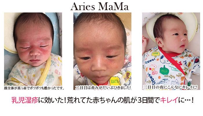 ニキビ 新生児 【専門家監修】新生児ニキビの種類と原因とは?注意点とおすすめの保湿剤8選
